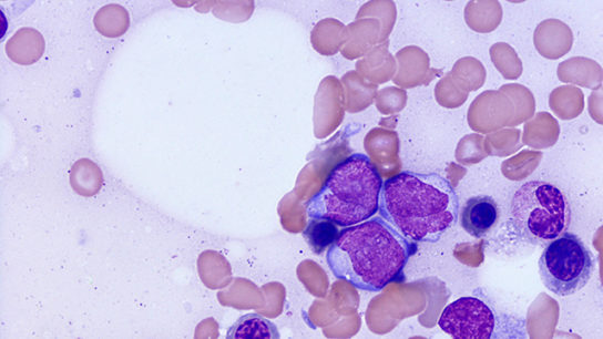 An enlarged view of AML.