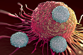 CAR T cells can have powerful activity against measurable multiple myeloma.