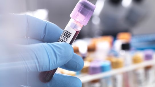 blood sample for clinical test