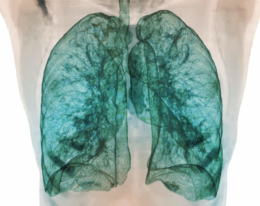 Screening for pulmonary impairment following respiratory viral infection is important.