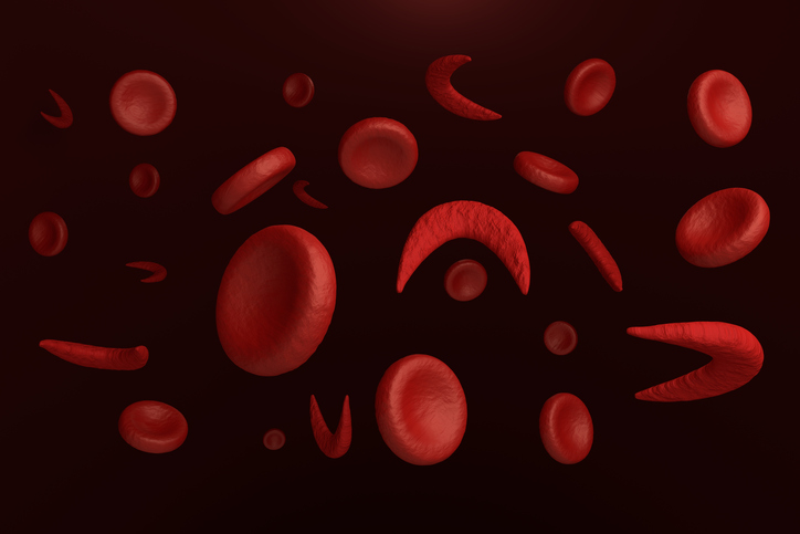 Management of patients with sickle cell disease can vary widely.