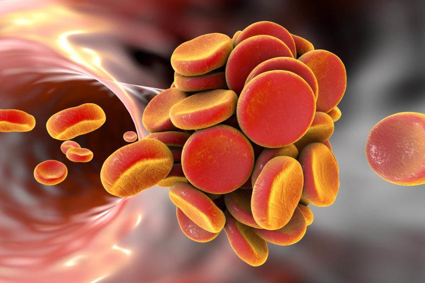 Thromboembol in blood vessel.