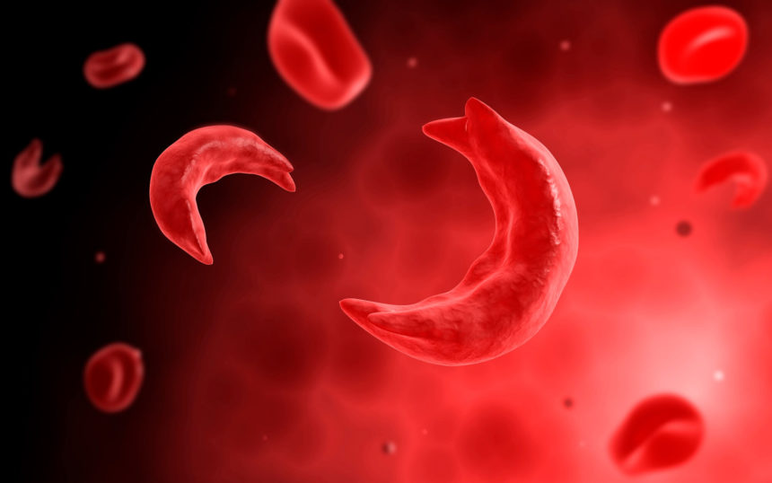 Computer illustration of sickle cells.