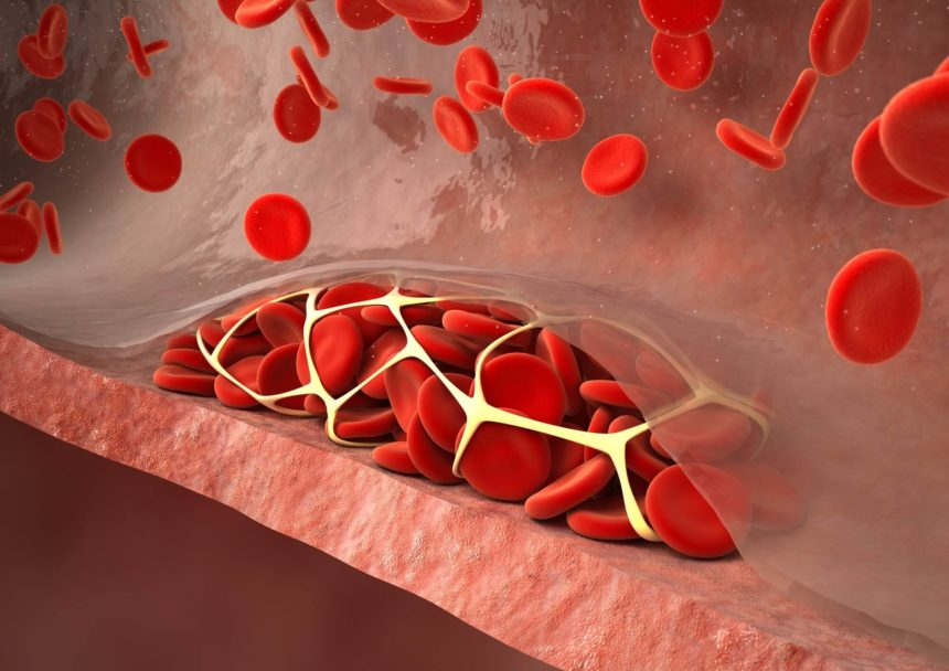 Researchers assessed incidence of recurrent thromboembolism and major bleeding in patients with cancer and incidental pulmonary embolism.