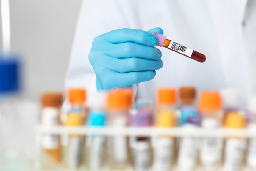 A lab technician choosing a blood sample from a rack of samples.