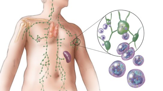 An illustration showing the lymph system, including an inset showing a lymph node and lymphoma cells in more detail.