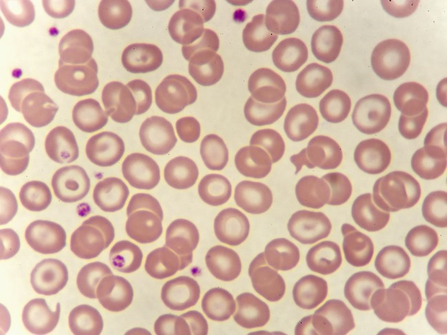 A blood smear of chronic myeloid leukemia cells.