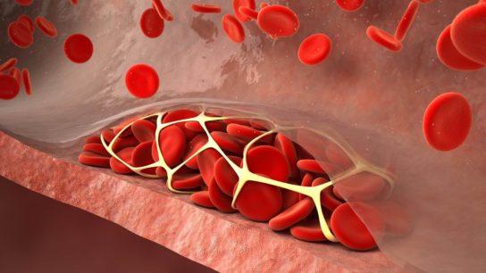 Venous thromboembolism.