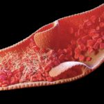 Researchers sought to determine methods for diagnosing and managing patients who develop coagulation disorders due to COVID-19 infection.
